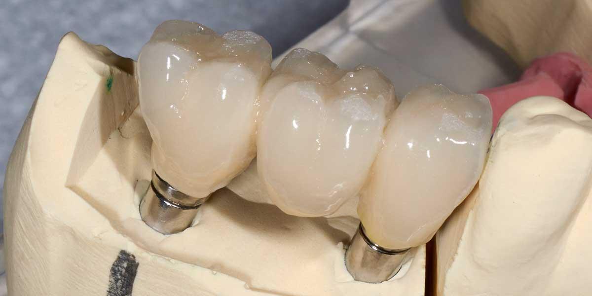Dental Implant Supported Bridges