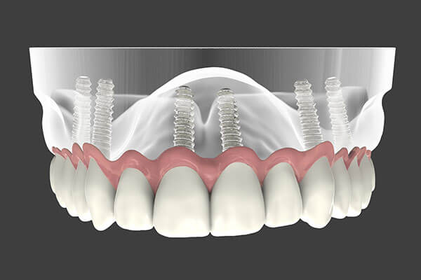 Implant Supported Dentures in Morgan Hill
