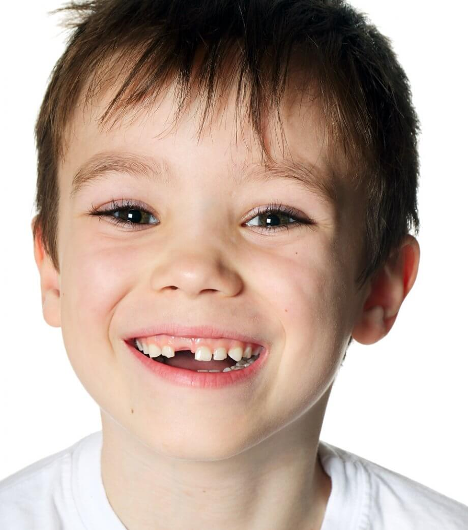 Child With Missing Front Tooth