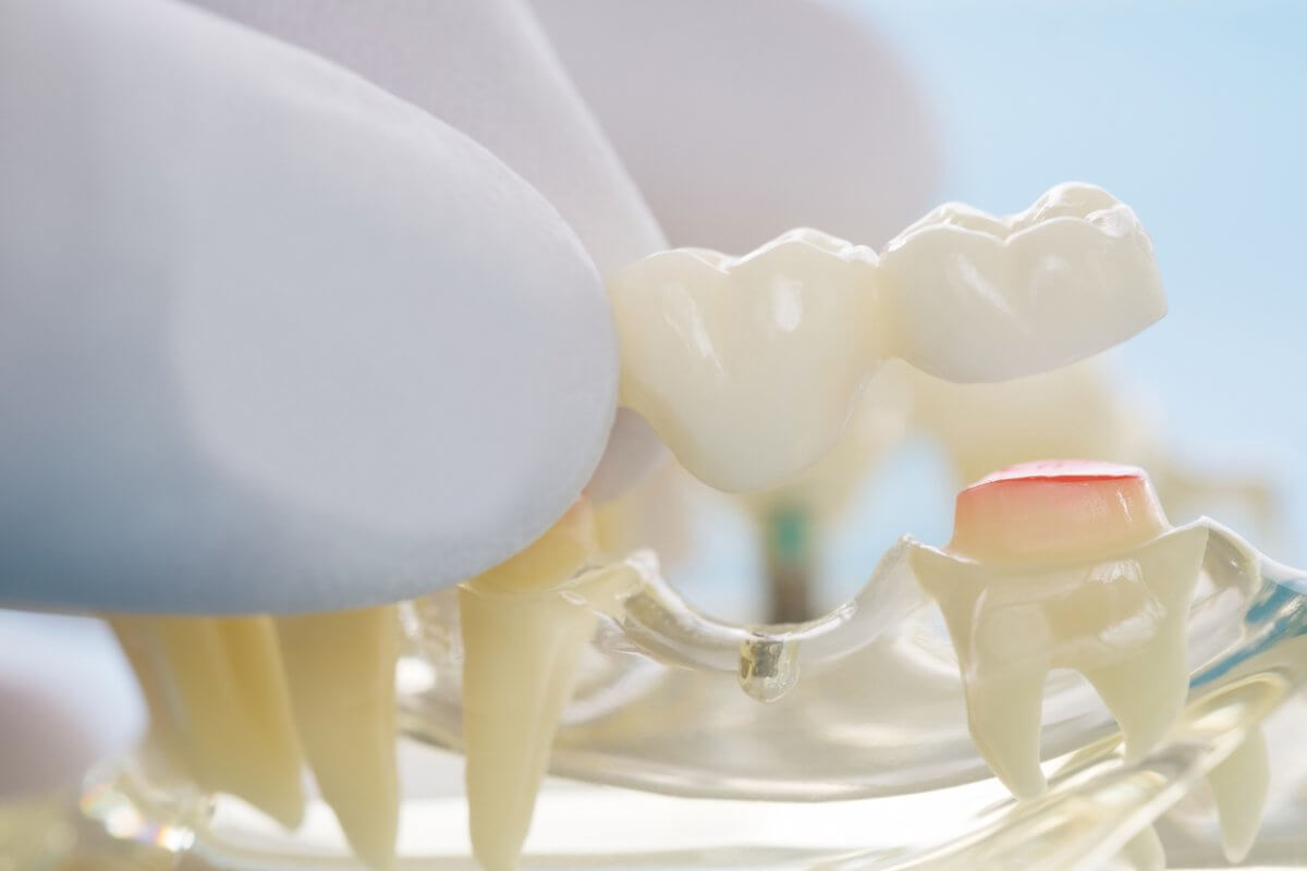 Model Of Dental Bridge