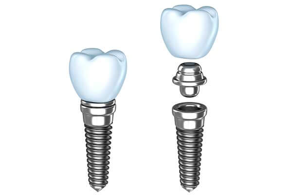 Single Dental Implants in Morgan Hill