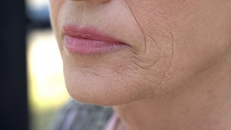 Close Up Of Woman's Mouth